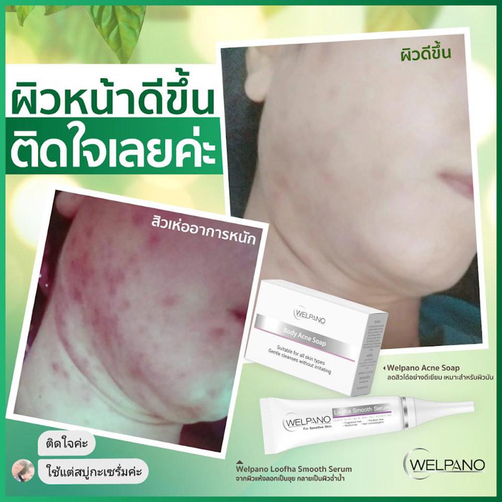 04-8859233123992-welpano-acne-gel-5.jpg