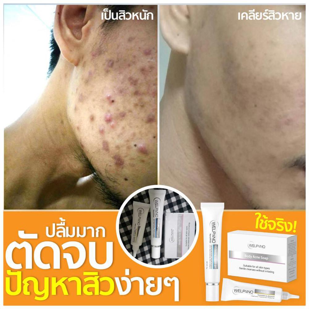 06-8857124747067-welpano-body-acne-soap-