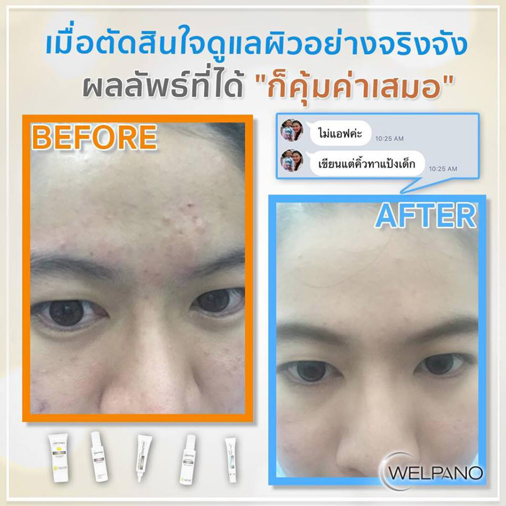 02-8859233123978-welpano-facial-liquid-c