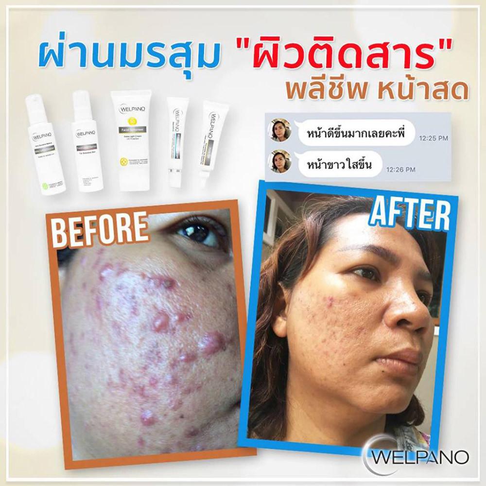 04-8859233123992-welpano-acne-gel-9.jpg