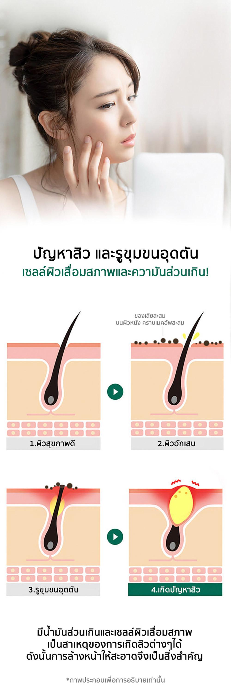 03---sbm-acne-clear-foam-5.jpg
