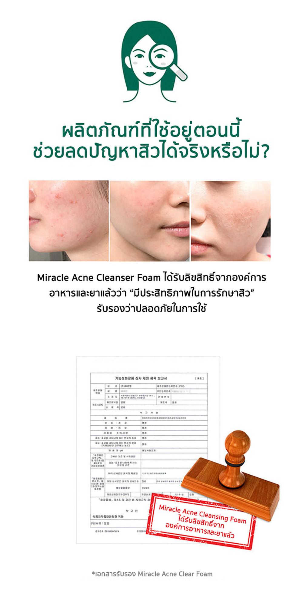 03---sbm-acne-clear-foam-3.jpg